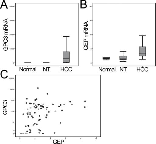 Overexpression of GPC3 and GEP mRNA levels in liver cancer. (A and B) Elevated expressions of GPC3 and GEP were observed in liver cancer (HCC) compared with the paralleled adjacent non-tumor liver tissues (NT) and with normal liver tissue from liver donors (P < 0.001, by one-way analysis of variance). (C) GPC3 and GEP transcript levels (HCC versus NT ratio) were significantly correlated (Spearman's ρ correlation coefficient = 0.363, P = 0.001).