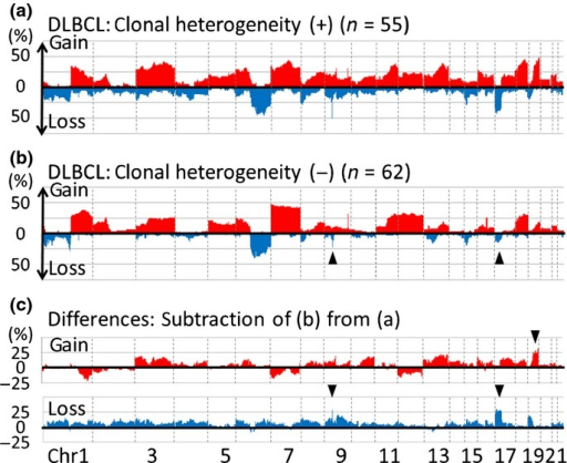 Chromosomal regions and frequencies of copy number alterations (CNA) for DLBCL with and without clonal heterogeneity. (a) CNA for 55 diffuse large B-cell lymphoma (DLBCL) cases with clonal heterogeneity. The x-axis represents chromosomal regions and the y-axis represents frequencies of gain (above 0) or loss (below 0). (b) CNA for 62 DLBCL cases without clonal heterogeneity. The profile of cases without clonal heterogeneity resembles those of cases with clonal heterogeneity (a) while loss of 9p and 17p are less common in cases without heterogeneity than in those with (arrowheads). (c) Differences in CNA between DLBCL with and without clonal heterogeneity. (Top) Subtraction of frequencies of gain in cases without clonal heterogeneity (b, red area) from those with (a, red area). The y-axis represents differences in frequency (>0: higher frequencies in cases with clonal heterogeneity; <0: higher frequencies in those without clonal heterogeneity). The characteristic gain in DLBCL cases with clonal heterogeneity is 19p (arrowhead) with more than 25% differences between cases with and without clonal heterogeneity. (Bottom) Subtraction of frequencies of loss in cases without clonal heterogeneity (b, blue area) from those with clonal heterogeneity (a, blue area). The y-axis represents differences (>0: higher frequencies in cases with clonal heterogeneity; <0: higher frequencies in those without clonal heterogeneity). The characteristic loss in DLBCL cases with clonal heterogeneity are 9p and 17p (arrow heads). All gain and loss with differences >25% are summarized in Table 3.