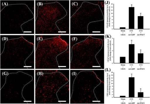 The effects of i.t. Ad-PTEN on CCI-induced microglial and astrocytic activation and upregulation of TNF-α. Spinal cord sections (10 μm) obtained 14 days post-surgery from sham-operated plus i.t. vehicle (A, D, G), CCI plus i.t. Ad-GFP (B, E, H), and CCI plus i.t. Ad-PTEN (C, F, I) groups. Immunostaining images show cells labeled with OX-42 (red; (A-C)) and GFAP (red; (D-F)), TNF-α (red; (G-I)) in the spinal cord. Quantification of OX-42 (J) and GFAP (K), and TNF-α (L) immunoreactivity in the ipsilateral dorsal horn of the lumbar spinal gray matter. Ad-GFP, adenovirus-mediated green fluorescent protein; Ad-PTEN, adenovirus-mediated phosphatase and tensin homolog deleted from chromosome 10; CCI, chronic constriction injury; GFAP, glial fibrillary acidic protein; TNF, tumor necrosis factor. Each bar in (J-L) represents the mean ± SEM with six rats per group. Ad-PTEN (i.t.) significantly inhibited CCI-induced upregulation of spinal OX-42, GFAP, and TNF-α immunoreactivity. Scale bars: 200 μm for all images (A-I). *P < 0.05 compared with sham-operated plus i.t. vehicle group; #P < 0.05 compared with CCI plus i.t. Ad-GFP.