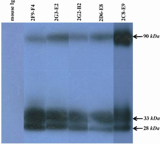 Detection of PSA in human semen using anti-PSA mAbs by western blot analysis. All produced anti-PSA mAbs could recognize a ∼33 kDa band related to free PSA in the seminal fluids. Two other bands, 90 kDa and 28 kDa, were also found in WB. That can represent PSA-PCI complex and endoproteolytic cleavage product of PSA, respectively.
