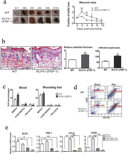 Compromised wound healing of PU in FSP-1-Cre/KLF4(flox) mice associated with decreased CCR2+MDSCs and fibrocytes(a). Similar to Figure 1c, except the WT and KLF4−/−(FSP-1) mice were used in the PU model (n=10). (b). Left: Representative images of HE staining of skin wounds in PU model. Right: Quantification of the epithelial thickness and the numbers of infiltrated lymphocytes in arbitrary red squares with the same sizes as the left (n=5). (c). Flow cytometry analysis to examine MDSCs and fibrocytes in mouse blood and skin wounds. (d). Similar to c, CD11b and Ly6C antibodies were used to examine inflammatory monocytes. (e). qRT=PCR to analyze expression of KLF4, FSP-1, CCL2, and CCR2 in the skin wounds. Scale bars: 100 μm, *p<0.05, **p<0.01.