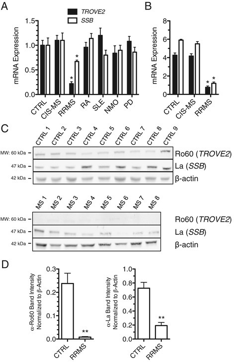Ro60 and La proteins are depressed in RRMS. (A) Ro60 (TROVE2) and La (SSB) transcript levels in CTRL (N = 24), CIS-MS (N = 16), RRMS (N = 22), RA (N = 18), SLE (N = 24), NMO (N = 22), and PD (N = 19) were determined by quantitative PCR after cDNA synthesis using oligo-dT. Results are normalized to CTRL = 1.0 after normalization to transcript levels of GAPDH, error bars are S.D. (B) As in (A) using whole genome RNA-sequencing data. (C) Western blotting to determine Ro60 and La protein levels in PBMC from CTRL (N = 9) and RRMS (N = 8). (D) Quantitative estimates of protein abundance relative to β-actin. *P <0.05, **P <0.01.