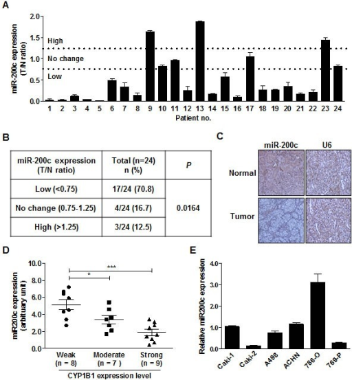 Inverse correlation between endogenous miR-200c level and CYP1B1 protein expression(A) MiR-200c expression in RCC tissues. MiR-200c levels were analyzed by RT-PCR with RNA from microdissected tumor (T) and adjacent normal (N) tissues. (B) Summary of miR-200c expression levels in RCC tissue samples. (C) In situ hybridization of miR-200c expression in normal and RCC tissues. (D) Association of CYP1B1 expression with miR-200c levels in RCC tissues. MiR-200c levels were measured by RT-PCR with RNA extracted from different scored and microdissected RCC tissue samples. *P < 0.05; ***P < 0.001 (E) Relative miR-200c expression in RCC cells was analyzed by RT-PCR.