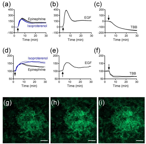 The label-free and TIRF profiles of receptor activation in HEK293-β2AR-GFP cells. (a–c) Real-time DMR signals induced by 10 µM epinephrine and 10 µM isoproterenol (a); 32nM EGF (b); and 10 µM TBB (c); (d–f) Real-time TIRF signals induced by 10 µM epinephrine and 10 µM isoproterenol (d); 32nM EGF (e); and 10 µM TBB (f); (g–i) TIRF images before (g), and 2 min (h) and 10 min (i) after the stimulation with 10 µM epinephrine. The data in (a–c) shows mean ± s.d. of eight replicates. Scale bar in g–i is 10 µm. This figure is reproduced with permission from Ref. [25].