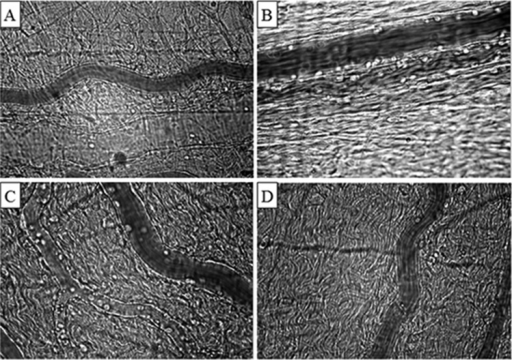Representative photomicrographs of the mesenteric microcirculation of a sham-operated rat (A); a control, non-treated rat (B); a lactated Ringer's solution-treated rat (C); and a Ringer's ethyl pyruvate solution-treated rat (D). Increased leukocyte-endothelial interactions were observed in the non-treated (B) and lactated Ringer's solution-treated (C) rats compared with the Ringer's ethyl pyruvate solution-treated (D) and sham (A) rats. Final magnification, 425X.