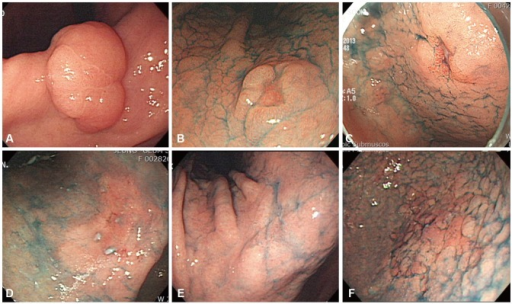 Endoscopic findings of early gastric cancer (EGC) lesions. (A) A whitish, elevated flat lesion (EGC 0-IIa) shown at an angle. (B) A doughnut-like elevated lesion (EGC 0-IIc) in the lesser curvature of the lower body. (C) A reddish depression (EGC 0-IIc) in the lesser curvature of the antrum. (D) Reddish mucosal changes (EGC 0-IIb) in the angle. (E) Whitish mucosa changes (EGC 0-IIb) in the angle. (F) Granular mucosal changes (EGC 0-IIb) in the greater curvature of the lower body.