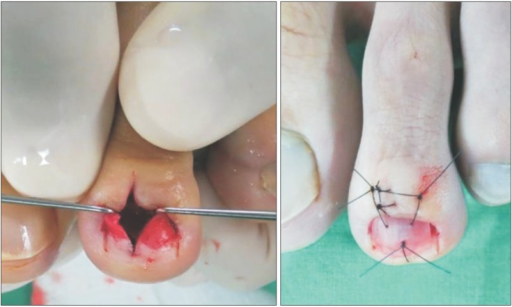 Intraoperative photographs showing the nail bed longitudinal incision and reattachment of the removed nail as a nail bed protector.