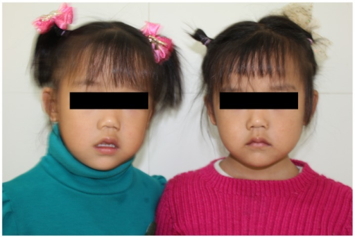 The patient (left, post-operative) and the patient's monozygotic twin sister (right). Neither of them has any distinct facial abnormalities.