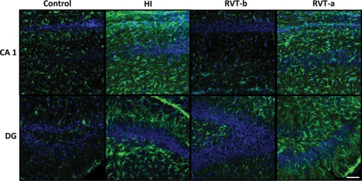 Representative confocal microphotographs of glial fibrillary acidic protein (GFAP)-immunoreactivity in brain sections counterstained with DAPI.On postnatal day 14, GFAP immunoreactivity (green) was particularly pronounced in the vicinity of damaged areas and this reactivity was substantially reduced in animals pre-treated with resveratrol. Scale bar: 40 μm.