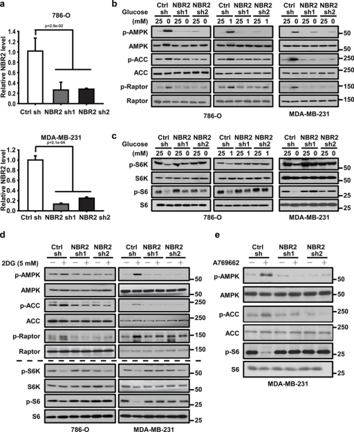 NBR2 regulates AMPK-mTORC1 signaling under energy stress(a) Bar graph showing NBR2 shRNA-mediated knockdown efficiency by real-time PCR analysis in 786-O and MDA-MB-231 cells (Mean ± s.d., n=3 biologically independent extracts, two-tailed paired Student's t-test). (b, c) 786-O or MDA-MB-231 cells infected with either control shRNA or NBR2 shRNA were cultured in medium with different concentrations of glucose for 24 hours. Cell lysates were then analyzed by Western blotting. (d) 786-O or MDA-MB-231 cells infected with either control shRNA or NBR2 shRNA were cultured in 0 or 5 mM 2DG-containing medium for 12 (for MDA-MB-231 cells) or 16 (for 786-O cells) hours. Cell lysates were then analyzed by Western blotting. (e) MDA-MB-231 cells infected with either control shRNA or NBR2 shRNA were cultured in 0 or 100 µM A769662-containing medium for 12 hours. Cell lysates were then analyzed by Western blotting. Source data for a can be found in Supplementary Table 1. Unprocessed original scans of blots are shown in Supplemental Fig. 8.