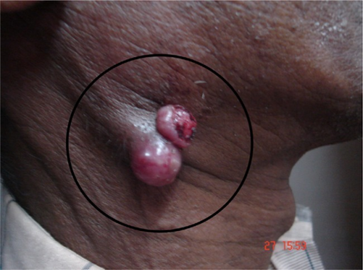 Ulcerated jugulodigastric node.