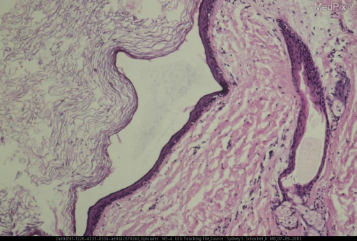 The cyst was lined by squamous epithelium with scattered sebaceous glands and hair follicles (right) and was filled with desquamated epithelium (left).