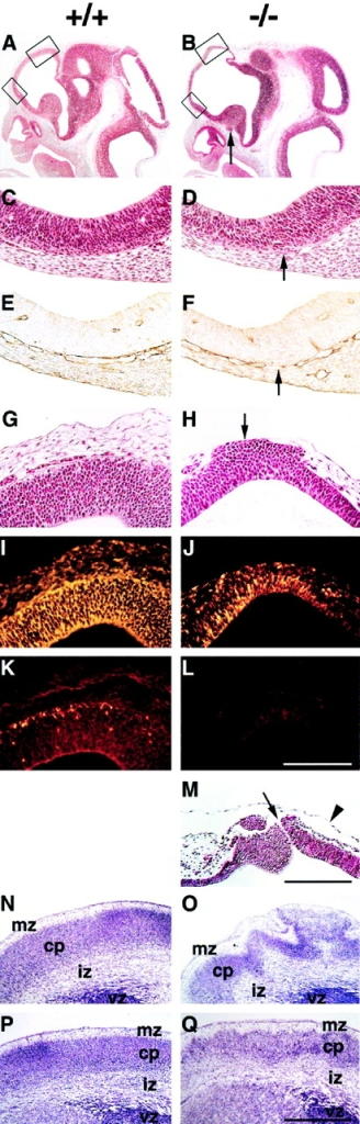Exencephaly and neuronal ectopias develop in the anterior region of the forebrain. (A and B) Hematoxylin/eosin staining of sagittal brain sections from wild-type (A) and perlecan- (B) E11.5 embryos. Note the extension and the thinning of the anterior part of the forebrain in the perlecan- embryo (upper box in B). Ectopias are visible ventral of the medial ganglionic eminence (arrow) in the homozygous embryo. (C–F) Higher magnification of the lower boxes indicated in A and B. In a normal brain, the neuroepithelium and the underlying mesenchyme are separated by a BM (C) that contains laminin-1 (E). In the perlecan- brain, the BM is discontinuous (D, arrow) and shows interrupted laminin-1 staining (F, arrow). (G and H) Higher magnification of the upper boxes indicated in A and B. In a normal brain, the neuroepithelium and the overlying mesenchyme are separated by a BM (G). In the perlecan- brain, neuroepithelial cells have invaded the overlying ectoderm (H, arrow). (I–L) Immunohistochemical localization of nestin and β-tubulin type III in the neocortex of normal and perlecan- embryos. The neocortex of the wild-type embryo contains nestin-positive cells (I) and a few β-tubulin type III–positive cells in the cortical subplate (K). Ectopic cells in the perlecan- embryo are positive for nestin (J) but negative for β-tubulin type III (L). (M) Hematoxylin/eosin staining of the forebrain region of an E11.5 homozygote showing a defect in the ectoderm and a small hole of 5–10 μm (arrow). Note that the amniotic membrane is still intact (arrowhead). (N–Q) Nissl staining of coronal sections of wild-type (N and P) and perlecan- (O and Q) E17.5 forebrain regions. The perlecan- brain shows a ruffled surface, large ectopias, and abnormal lamination (O). Posterior to this area, the ruffles and defects in lamination are less severe (Q). Abbreviations: mz, marginal zone; cp, cortical plate; iz, intermediate zone; and vz, ventricular zone. Bars: (C–L) 125 μm; (M) 250 μm; and (N–Q) 500 μm.