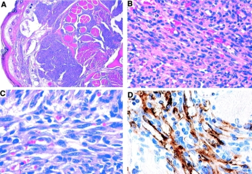 Microscopic changes in CDVG mice. (A) Tail. Multiple nodular angioproliferative tumors located in the dermal compartment of the skin. (B) Tail. Large numbers of spindle-shaped cells arranged in interlacing fascicles. Blood vessels are lined by plump endothelial cells and surrounded by oval to spindle-shaped cells. (C) Ear. Border between interlacing fascicles of spindle-shaped cells. There are irregular vascular clefts between cells that contain erythrocytes. (D) Immunohistochemical staining of a typical angioproliferative lesion with anti-CD34. Numerous positively stained cells are present.