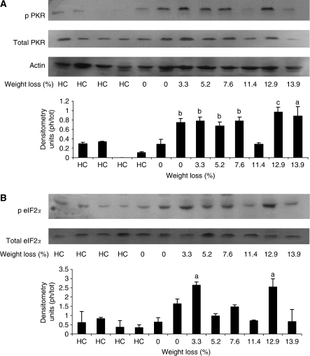 Western blots of phospho PKR (A) and eIF2α (B) in comparison with total PKR and eIF2α in rectus abdominus muscle of healthy controls (HC) and cancer patients as a function of weight loss. Actin was used as a loading control. Each lane represents muscle from an individual patient. The specificity of the antibodies is given in Patients and Methods section. A densitometric analysis of the ratio of phospho to total forms is given underneath and represents the average of three separate blots. Differences from healthy controls are shown as a, P<0.05 or b, P<0.01. c, P<0.001.