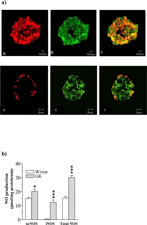 a Confocal microscopy of islets directly isolated ex vivo from the GK rat. The islets were double-immunolabelled for insulin or glucagon and iNOS and analysed by confocal microscopy. Insulin staining and iNOS staining appear, respectively, as red (A) and green (B) fluorescence. Co-localization of insulin/iNOS is seen as orange-yellowish fluorescence (C). Similarly glucagon staining and iNOS staining appear, respectively, as red (D) and green (E) fluorescence. Co-localization of glucagon/iNOS is seen as orange-yellowish fluorescence (F). Bars indicate lengths (10 µm). b Plates G–I and J–L show the absence of iNOS fluorescence in Wistar control islets (H, K). c NOS activities in freshly isolated islets. NO production from ncNOS, iNOS and total NOS in freshly isolated islets from Wistar control rats (open bars) and GK rats (hatched bars). Values are mean±s.e.m for n = 4–6 animals. *P<0.05; *** P<0.001