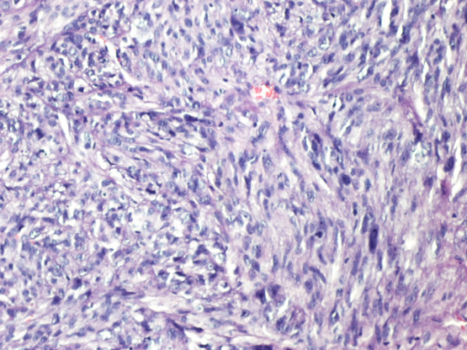 Pathology of the excised cutaneous nodule consistent with metastatic uterine leiomyosarcoma (cellular eosinophilic spindle cell tumor with nuclear atypia and mitosis) (HE ×40 and ×200).