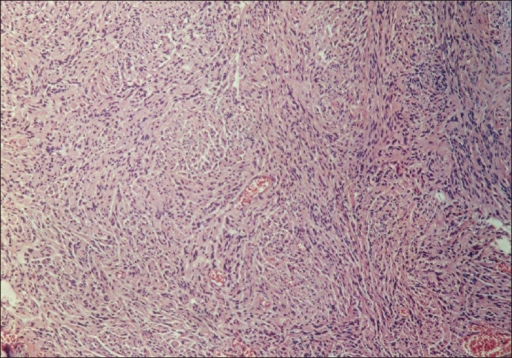 Histopathology of Case 2: Antoni A pattern with fascicules and bundles of non-pigmented spindle cells with elongated bland nuclei (H and E, ×25)