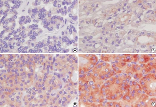 Immunohistochemical staining demonstrates the intensity of COX-2 expression in the cytoplasm of follicular carcinoma cases. (A) score 0; (B) score 1; (C) score 2; (D) score 3 (×400).