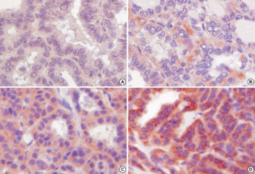 Immunohistochemical staining demonstrates the intensity of iNOS expression in the cytoplasm of papillary carcinoma cases. (A) score 0; (B) score 1; (C) score 2; (D) score 3 (×400).