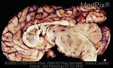 This specimen from a 40-year-old patient initially presented with headaches, vomiting, nystagmus, and papilloedema. He died before any therapeutic interventions. A sagittal section through the brain reveals a large infiltrating GBM in the brainstem with prominent necrosis and hemorrhage.
