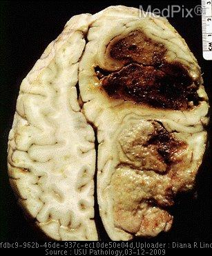 This is a specimen from a 60-yearold man who presented with headaches, deteriorating vision, and periodic loss of consciousness. He suddenly developed left-sided hemiplegia, fixed and dilated pupils and died shortly after. A horizontal section through the brain reveals a massive glioblastoma in the right posterior lobe and a recent extensive hemorrhage anterior to the tumor. Note the global gyral flattening.
