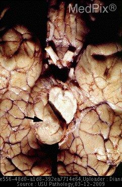 A view of the base of the brain in a patient with a glioblastoma. Note the marked uncal (uncinate) or downward transtentorial herniation produced by the medial temporal lobe being forced into the hiatus (gap) between the cerebral peduncles and the tentorium secondary to the acute cerebral expansion by hemorrhage. Uncal herniation produces the well-known fixed and dilated pupil from compression of outside of the oculomotor nerve (CN3)