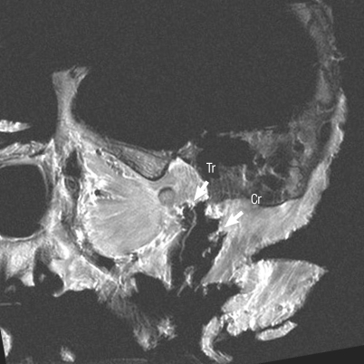 An oblique sagittal T1-weighted magnetic resonance image shows temporofacial and cervicofacial rami of the facial nerve emerging through the petrotympanic fissure and stylomastoid foramen, respectively. The temporofacial (Tr) and cervicofacial (Cr) rami of the facial nerve.