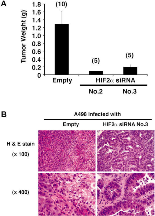 Tumor Suppression by HIF2α shRNA Is Not Restricted to a Single Cell Line(A) Tumor weights approximately 8 wk after subcutaneous implantation of A498 cells infected with the indicated retroviruses in nude mice. Number of tumors analyzed is shown in parentheses. Error bars = one standard error.(B) Representative histological sections after staining with hematoxylin and eosin of tumors formed by A498 cells infected with the indicated retroviruses.