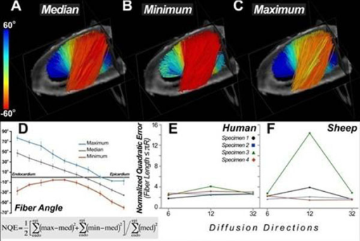 (A) Lateral view of a human heart depicting fiber tractography results from a volume of interest placed in the lateral wall. Fibers were colored according to their median helix angles. (B) Fibers within the same region colored according to their minimum helix angle values. (C) Fibers colored according to their maximum helix angles. (D) Plot of maximum, median and minimum helix values as they vary from endocardium to epicardium. (E) Normalized quadratic error (NQE) calculated for 4 human hearts imaged with 6, 12 and 32 diffusion-encoding directions. The NQE robustly detects the noisy dataset obtained in the third sheep heart (green) and shows the image quality is lowest with the 12-direction encoding scheme.