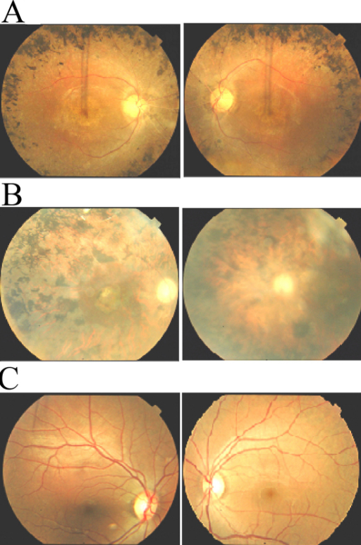 Fundus photographs of affected individuals of families PKFP161 and PKRP183. A: OD and OS of affected individual 17 of PKRP161 (age: 28 years). B: OD and OS of affected individual 7 of PKRP183 (age: 55 years). C: OD and OS of unaffected individual 19 of PKRP183 (age: 51 years). Photographs show peripheral fundus demonstrating several features associated with RP including a waxy pallor of the optic disc, attenuated arterioles and peripheral bone spicules. Visual acuity were recorded as 6/24, 6/24 (OD, OS) and 6/18, 6/18 (OD, OS) for individual 17 of PKRP161 and individual 7 of PKRP183, respectively. OD: Oculus Dexter (right eye); and OS: Oculus Sinister (left eye).