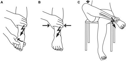Clinical tests for injury of the syndesmosis. The tests