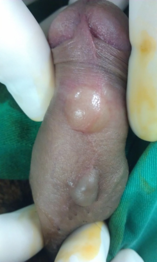 Cyst on penis treatment