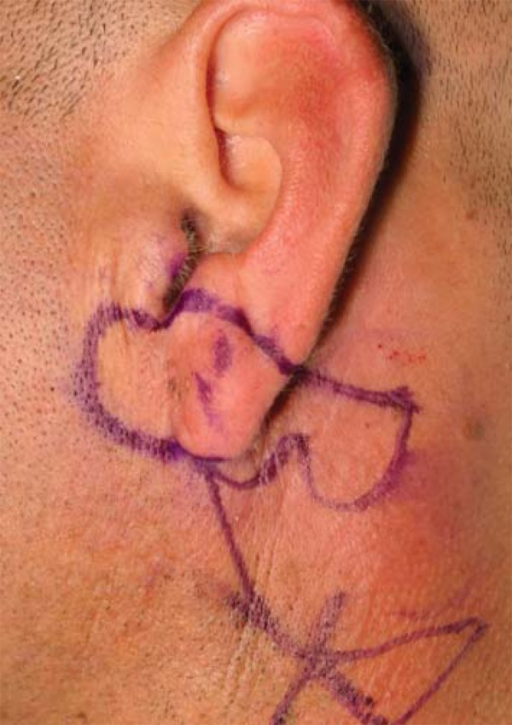 Malignant melanoma of the left earlobe with planning of the Gavello technique