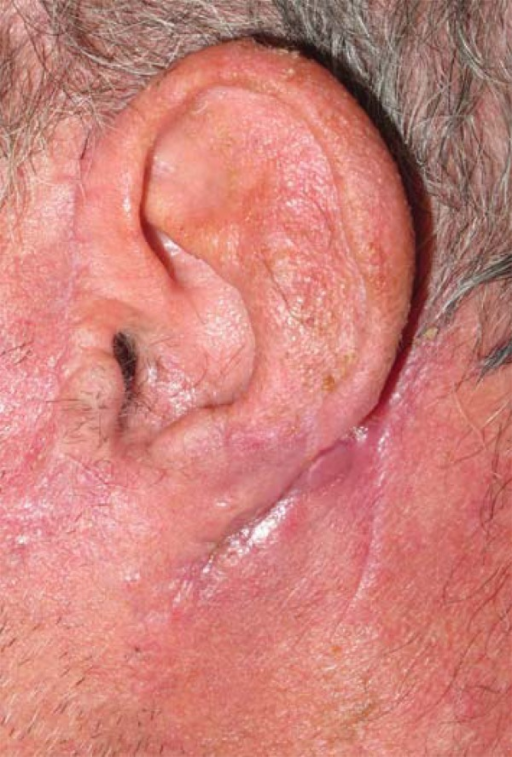 Three months follow-up of patient in Figure 3