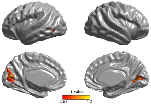 Cortical thinning in POAG patients compare to normal controls.Differences in cortical thickness are superimposed on a hemisphere-unbiased iterative surface template. Color represents the regions of cortical atrophy in patients with POAG.