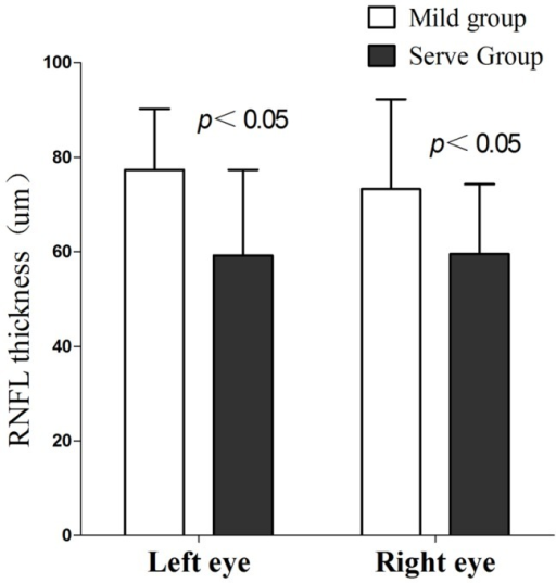 Retinal nerve fiber layer thickness (RNFL) thickness differences in bilateral eyes between mild and severe groups.
