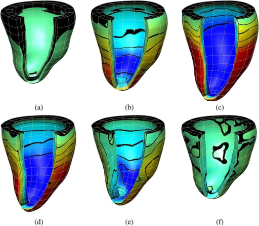 (a), (b), and (c) show the displacement values in the fiber direction at three time steps during diastole; (d), (e), and (f) at three time steps during systole. Displacement values are represented by a color map from dark blue ( − 5.0) to red (5.9) and contour bands.