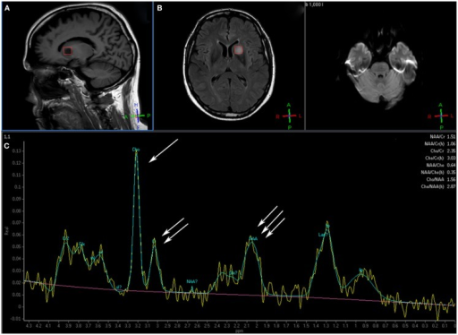 This patient with a glioblastoma multiforme shows the voxel over the area of interest in the tumor over the sagittal T1 (A) and axial FLAIR (B) image. Magnetic resonance spectroscopy (C) shows an elevated choline peak (single arrow) and decreased creatine (double arrow) and N-acetyl aspartate (NAA) peaks (triple arrow), which is the typical pattern for tumor (Images courtesy of Dr. Ashok Srinivasan, University of Michigan).