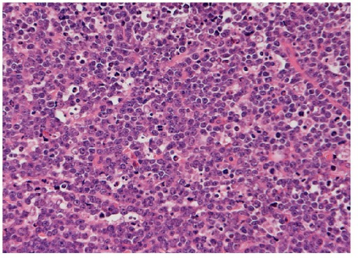 Histology from open wedge biopsy. The tumour showed diffuse sheets of lymphoid cells punctuated by tingible body macrophages (H&E 10X).