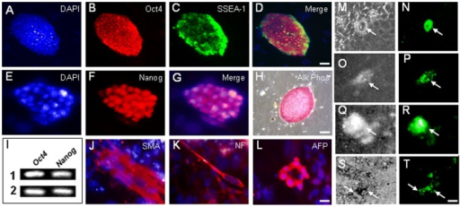 Derivation of a Pax6-GFP reporter mES cell line.(A–H) Stem cell identity of new ES cell line confirmed by immunofluorscence for undifferentiated ES cell markers Oct4, SSEA-1, Nanog, and by histochemical staining for alkaline phosphatase (Alk Phos) activity. (I) Oct4 and Nanog expression confirmed in two Pax6-GFP mES cell clones by RT-PCR. (J–L) Differentiation of mES cells into mesodermal, neuroectodermal and endodermal derivatives confirmed by immunofluorscence for smooth muscle actin (SMA), neurofilament (NF), and alpha-fetoprotein (AFP), respectively. (M–T) Pax6-GFP reporter expression in mES cells detected following transfection with Pax6 (M–O) or Six3 (Q–T) expression vectors 3 days post-transfection. M,O,Q,S, phase contrast; N,P,R,T GFP detection. Scale bars: A-D, H 40 µm; E-G, J-L 10 µm; M–T 20 µm.