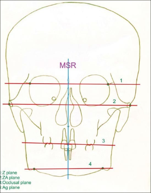 Mid Sagittal Reference line & Horizontal Planes