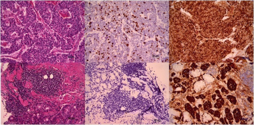 Histology and immunohistochemistry staining of gastrinomas. Upper panel represents high-grade non-gastric and lower panel is low-grade gastric gastrinoma. The image shows histology, Ki-67 staining, and chromogranin staining from left to right, (100× magnification)