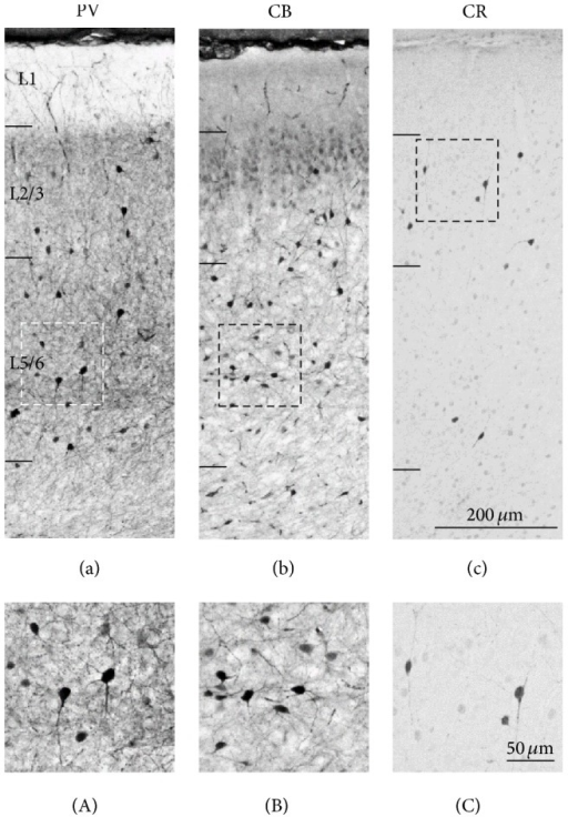 Localization of interneuron in the mouse PFC. Representative light micrograph showing laminar distribution of PV (a), CB (b), and CR (c) neurons in the PL. (a) PV neurons are located in L2/3 and L5/6. (b) CB neurons are mainly located in L2/3 and L5/6. The principal neurons in L2 are weakly immunopositive to CB. (c) CR neurons are mainly located in L2/3. (A)–(C) Higher magnification images of interneurons in the PL. Scale bars = 200 μm in (c) (applies to (a)–(c)); 50 μm in (C) (applies to (A)–(C)).