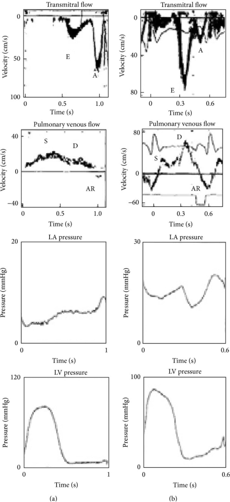 (a) Doppler and hemodynamic flow and pressure curves in patients with a delayed relaxation filling pattern. (b) Patients with restrictive filling patterns, adapted from Thomas et al. [40].