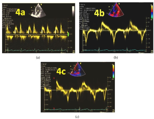 Pitfalls of the E/A and E/E′ ratio measured using PW-Doppler and TDI. Different values for diastolic dysfunction when measurements are performed using (a) PW-Doppler; (b) TDI measurement of lateral mitral valve annulus motion; (c) TDI measurement moved light to the lateral LV wall.