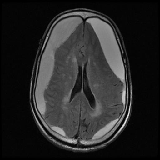 Bilateral chronic subdural haematoma; what should be taken into account is the absence of the mass effect on the structures of the median line, and the presence of the compressive effect on the noble brain structures – MRI image, T1
