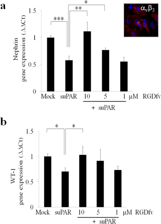 SuPAR mediated down-regulation of nephrin depends on αvβ3 integrin interaction and is associated with reduced activity of WT-1.(a–b) Quantification of qPCR analysis of nephrin (a) and WT-1 (b) expression in Mock and suPAR treated (20 ng/mL) for 24 hours in CIHPs pre-incubated with different concentration (1, 5 and 10 μM) of αvβ3 antagonist (RGDfv). Results obtained by using the specify human TaqMan assays are expressed as relative fold change in treated cells vs. mock cells (ΔΔCt) and represent the average of 3 independent experiments ±SD. Values were normalized to the expression of GAPDH gene. Right upper picture of panel A shows one representative immunoflourescence staining out of 3 of αvβ3 (594 Alexa Fluor) integrin expression in red and nucleus in blue (DAPI) in CIHPs.