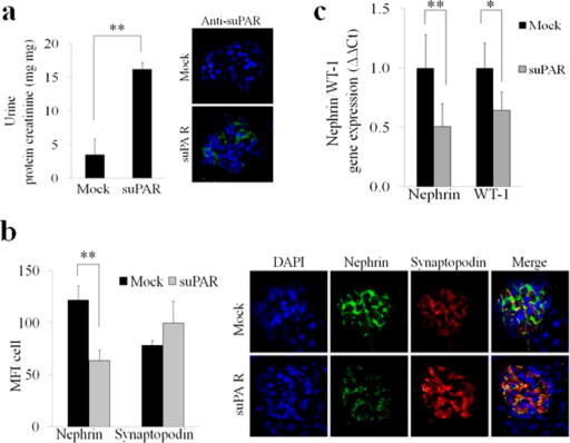 Injection of high doses of recombinant mouse suPAR into uPAR-knockout (Plaur−/−) mouse model induces down-regulation of nephrin expression.(a) Quantification (left panel) of the ratio between urine total protein (mg)/creatinine (mg) concentration of suPAR treated mice with high dose of 20 μg of mouse recombinant for 24 hours vs control mice (Mock) (N = 3 mice for group). Immune-fluorescence in green (right panel) of suPAR (488 Alexa Fluor) deposit into glomerular tissue of suPAR treated Plaur−/− mice. (b) Quantification (left panel) of immunoflourescence staining of nephrin and synaptopodin expression in Mock and suPAR treated mice. (N = 3 mice for group). DAPI staining was used to determine cell numbers. Data are expressed as average of MFI/cell ±SD. Representative immunoflourescence staining (right panel) of nephrin in green (488 Alexa Fluor), synaptopodin in red (594 Alexa Fluor) and nucleus in blue (DAPI) expression in untreated (Mock) and suPAR treated mice (N = 3 mice for group). (c) QPCR analysis of nephrin and WT-1 expression in Mock and suPAR treated mice obtained by using specific mice TaqMan assays and expressed as relative fold change ±SD vs. mock cells. (N = 3 mice for group). Statistical significance (P) is indicated by asterisks and is represented as: *<0.05; **<0.01; ***<0.001.