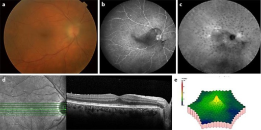 Ocular findings at presentation. Images of the right eye are shown. The findings were symmetric bilaterally. a Fundus photo notable for disc hyperemia and fine hypopigmented lesions in the posterior pole. The image is blurred by the vitritis. b Fluorescein angiography demonstrating hypofluorescent dots in the posterior pole. c Indocyanine green angiography demonstrating multiple hypofluorescent dots in the posterior pole. d Optical coherence tomography demonstrating normal foveal contour and outer retinal architecture, and no fluid. e Multifocal electroretinogram showing moderately reduced cone-mediated function of the posterior pole.